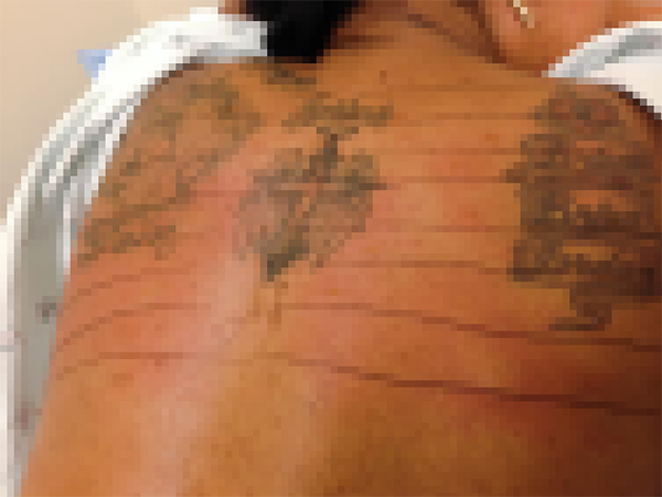 Positive Allergy Test Results on Back Pixelated